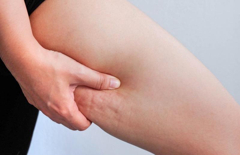 セルライトは筋トレで健康的に消せる。ホントの原因と対策を調査